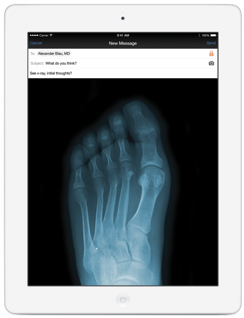doximity interface showing a message with an attachment of an X-Ray image of a foot that is being sent to another doctor for review